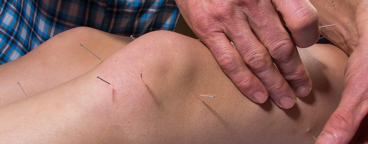 Dry needling New York, NY