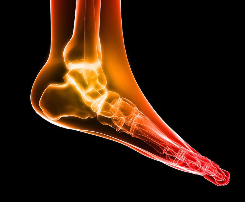 Why Consider Foot Strike?