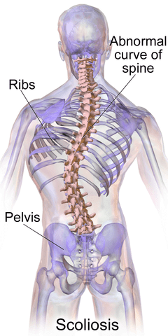 What is Scoliosis? Guideline